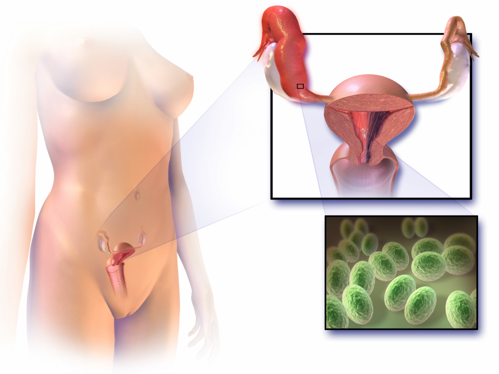 Fig 1 - Pelvic inflammatory disease refers to infection of the upper female genital tract.