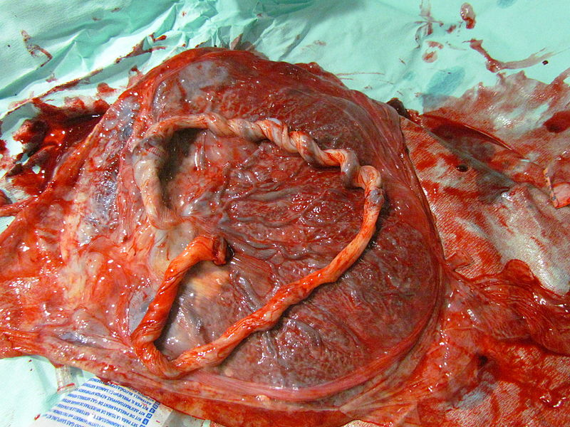Fig 2 - A complete placenta. In the assessment of post-partum haemorrhage, the placenta should be examined.