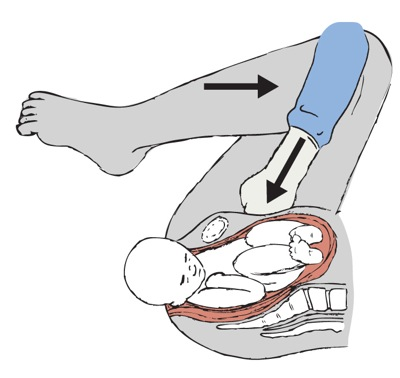 Fig 2 - The McRoberts manoeuvre - hyperflexion of the legs to increase the AP diameter of the pelvis.