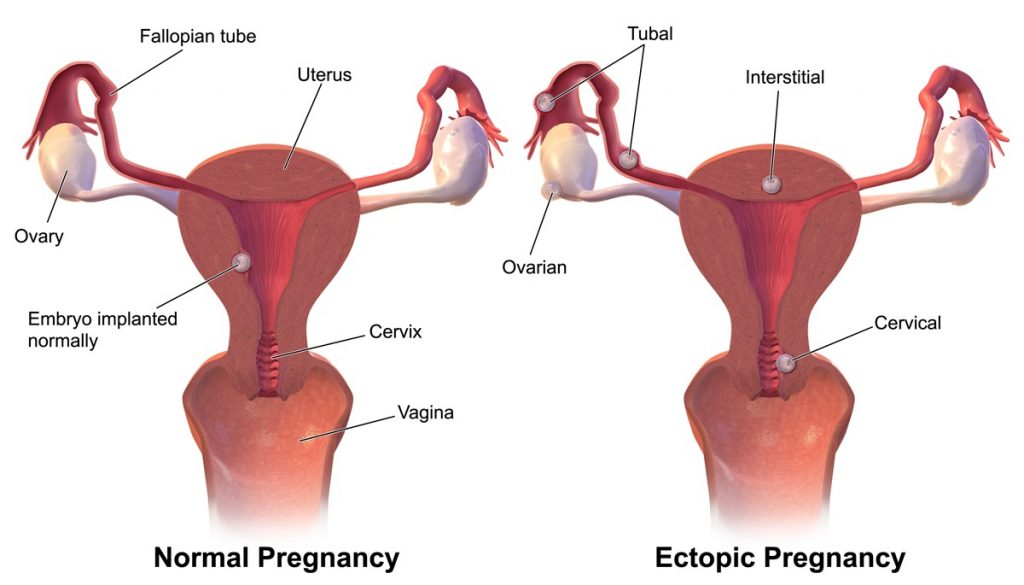 Ectopic Pregnancy Rupture Symptoms Management
