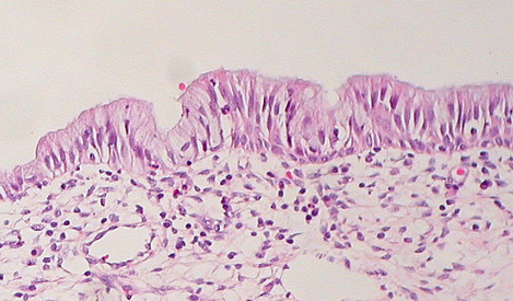 Fig 1 - Normal columnar epithelium of the cervix. Cervical polyps result from focal hyperplasia of this epithelial layer.