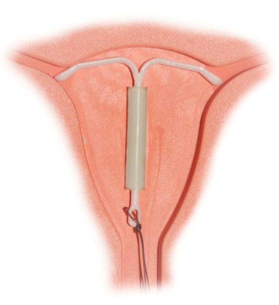 Fig 3 - The mirena intrauterine system, part of the pharamacological management of heavy menstrual bleeding.