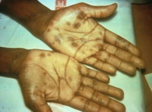 Fig 3. Rash typical of secondary syphilis