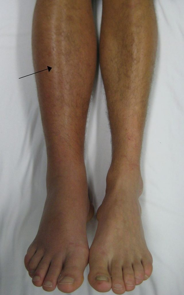 Fig 2 - Deep vein thrombosis in the right leg.