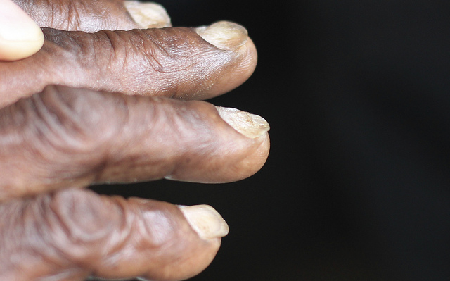 Fig 1 - Koilonychia (spoon-shaped nails), a rare sign of anaemia.