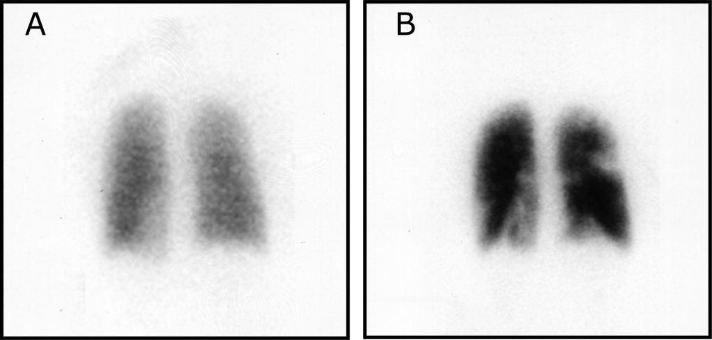 Fig 3 - V/Q scan showing ventilation perfusion mismatch. A - Inhalation of Xenon 133 gas, showing uniform ventilation to lungs. B - IV injection of Technetium-99m- labeled albumin, showing areas of decreased activity.