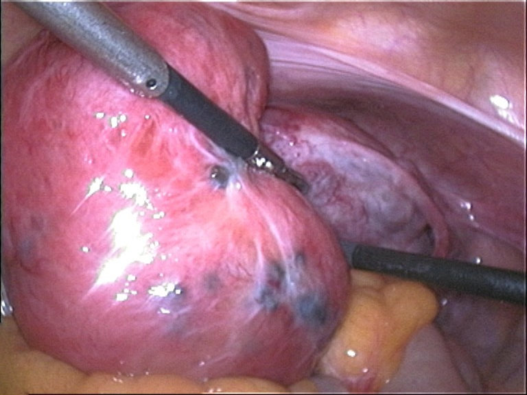 Fig 3 - A enlarged adenomyotic uterus, as seen on laparoscopy