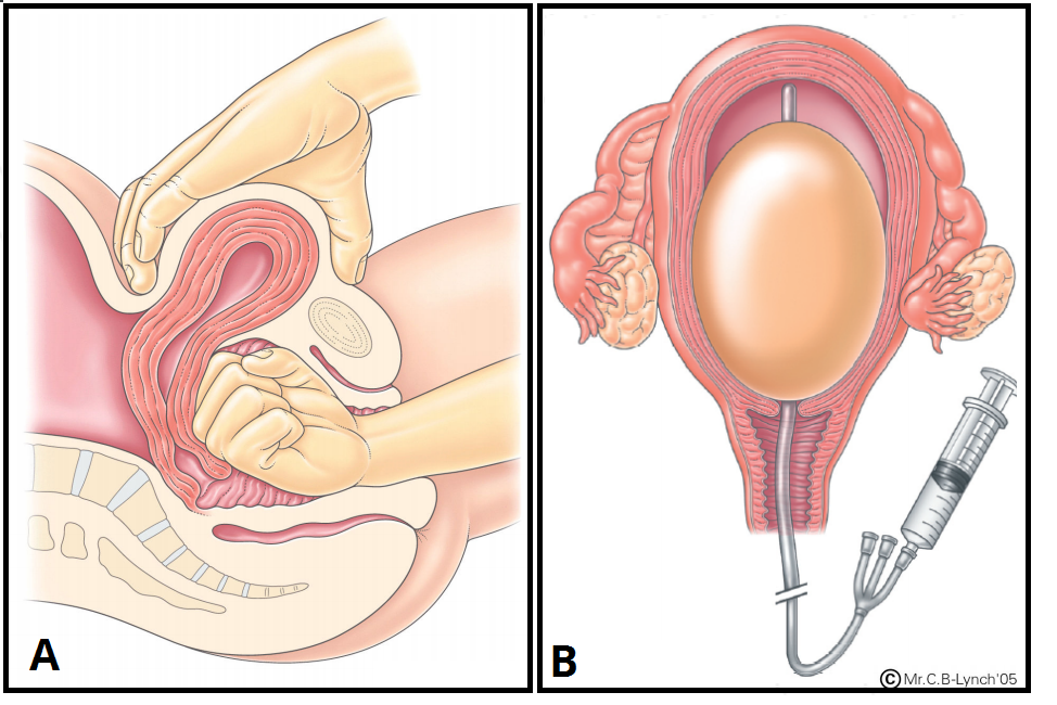 Fig 3 - Management of PPH; (a) Bimanual compression, (b) Balloon tamponade.