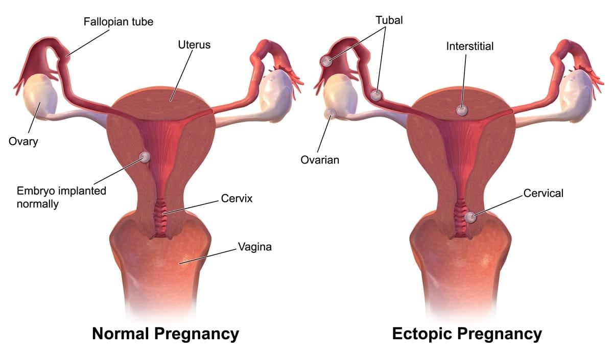 Ectopic Pregnancy - Rupture - Symptoms