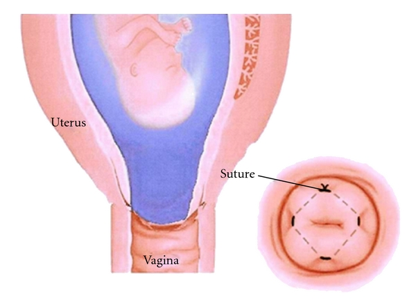 Fig 4- Cervical cerclage, where a suture is used to close the cervix.