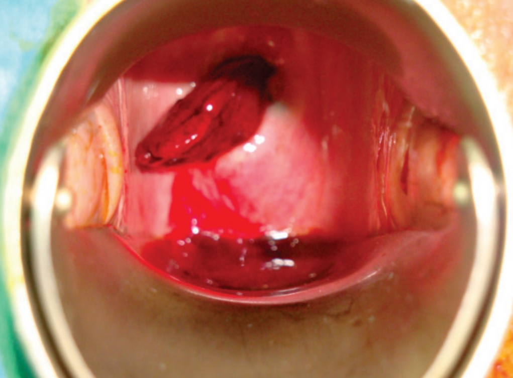 Fig 2 - A vascularised haemorrhagic mass protruding through the external cervical os. This is a giant endometrial polyp.