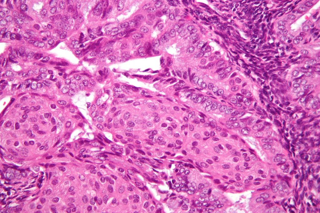 Fig 1 - High magnification micrograph of endometrial adenocarcinoma.
