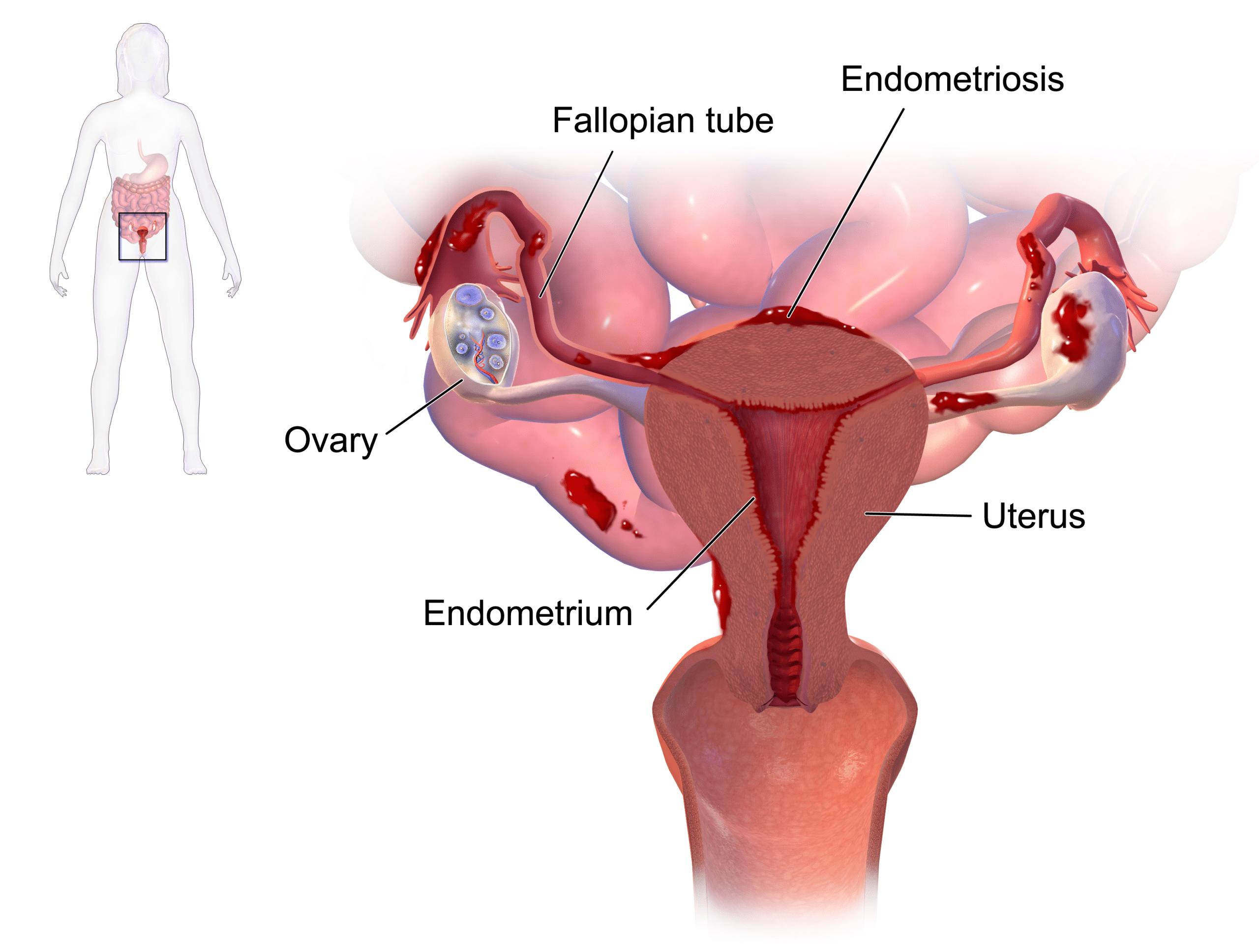 Endometriosis - Clinical Features - Diangosis - TeachMeObGyn