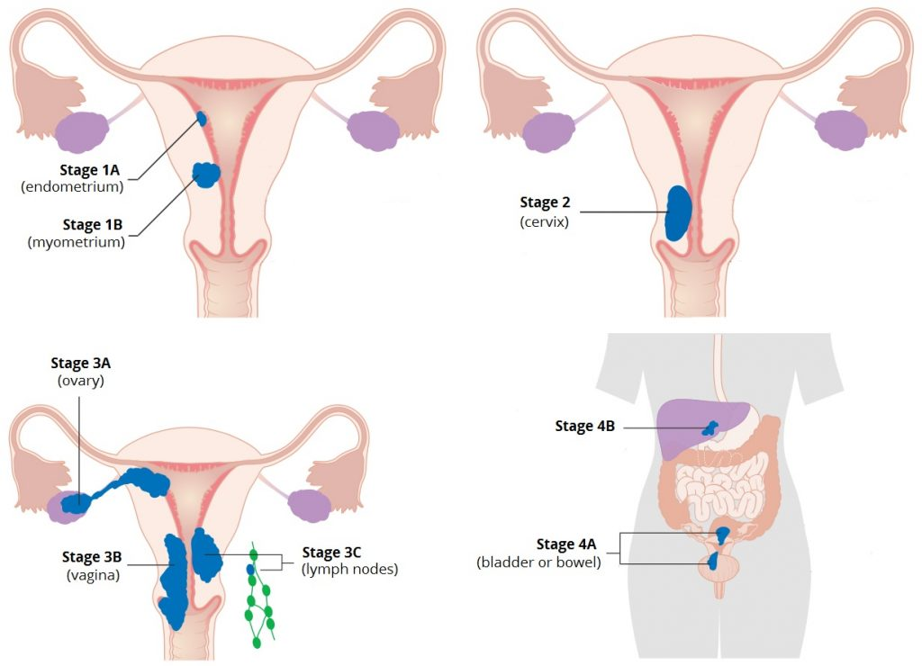 Fig 3 - The FIGO staging on endometrial cancer