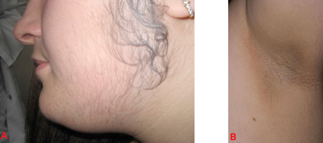 Fig 1 - Features of PCOS; (A) Hirsuitism and (B) Acanthosis nigricans.