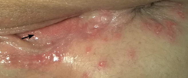 Lesions typical of a Herpes infection