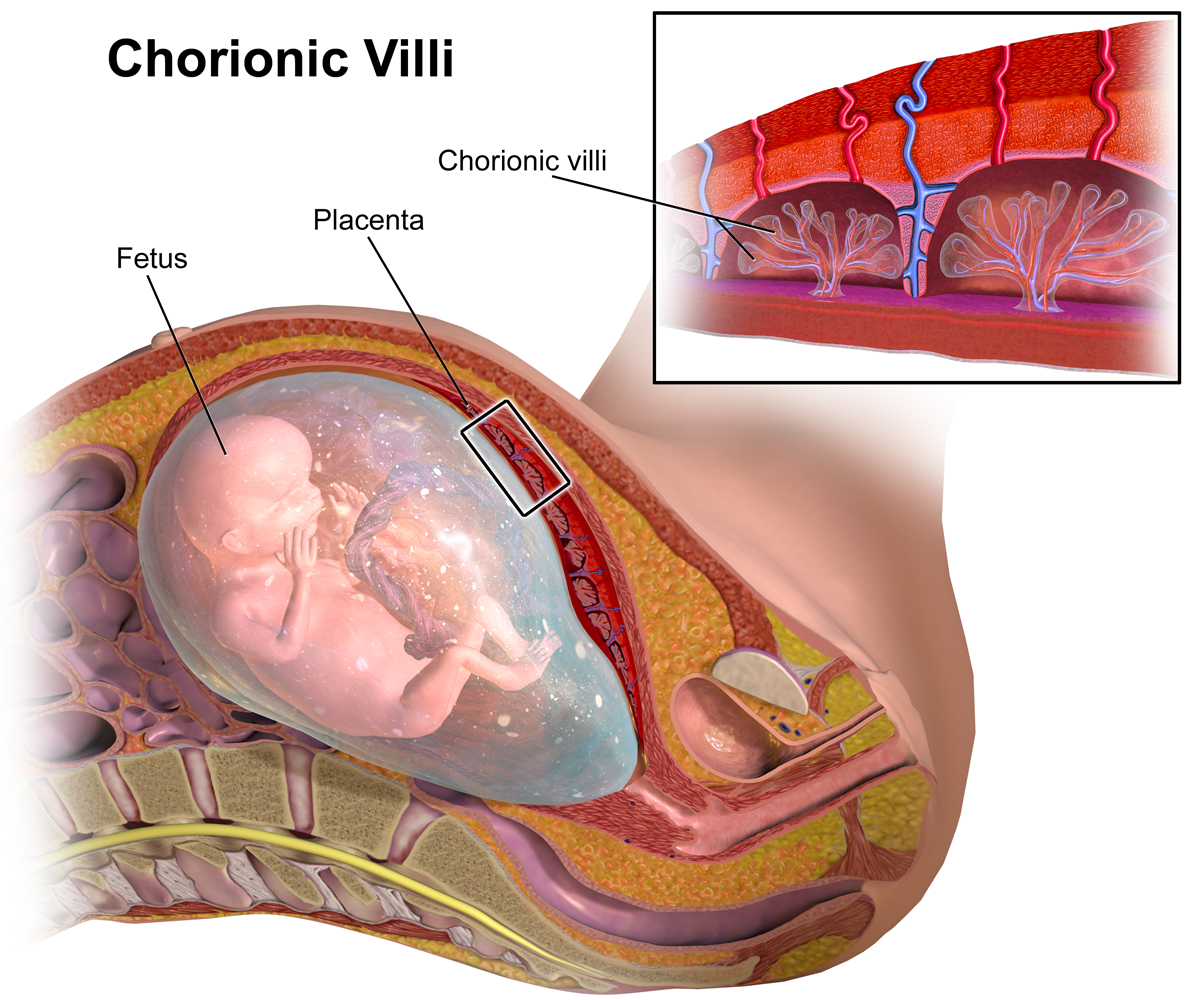 Fig 1 - The chorionic villi; these are the site of biopsy in CVS.