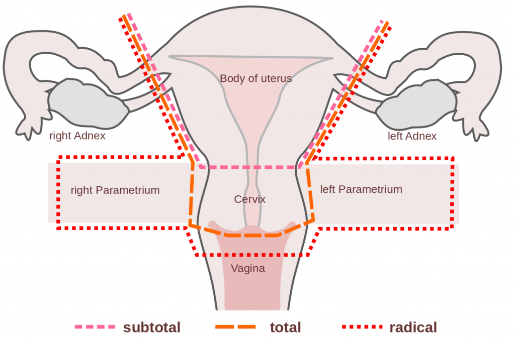 Hysterectomy Procedure Indications Complications
